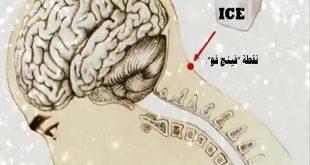 11 فائدة صحية من وضع مكعب الثلج على نقطة محددة من رأسك