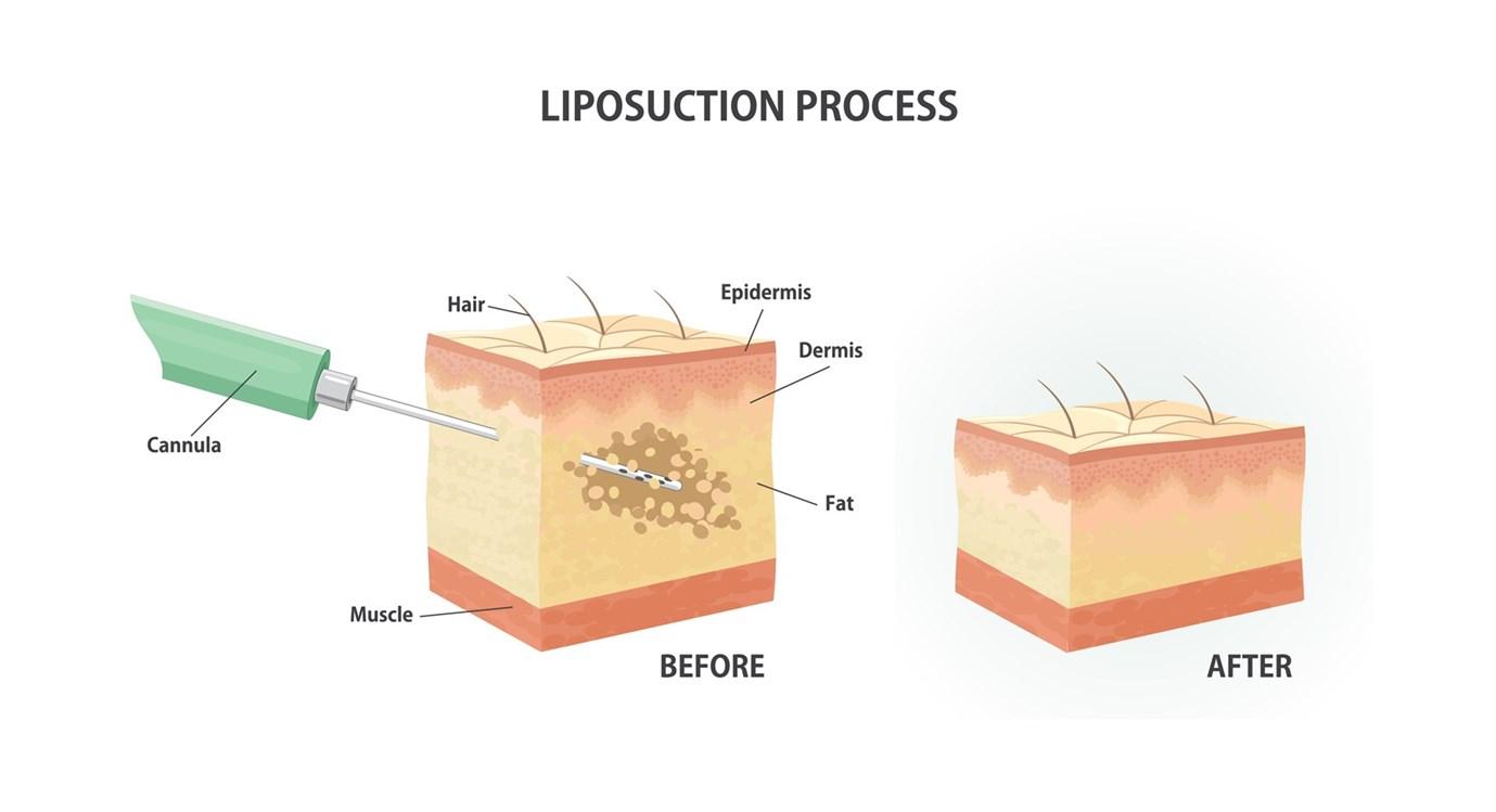 كيف يتمّ شفط الدهون من دون جراحة؟