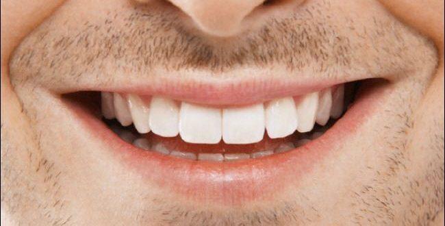 خطوات بسيطة للغاية وغير مكلفة تمنحك أسنانا ناصعة البياض