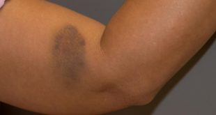 ظهور كدمات مفاجئة على جلدك ينذرك بمشكلات صحية خطيرة
