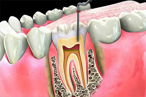ما لم يخبركم به أطباء الأسنان عن فتح الأسنان والأضراس والأمراض التي تنتج عنها