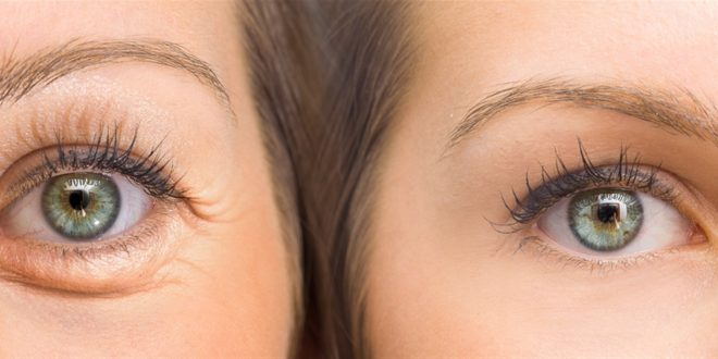ما هي اجراءات التجميل التي يمكن اعتمادها للتخلص من التجاعيد