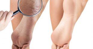 ما هي أسهل العلاجات المنزلية في تشقق القدمين ؟