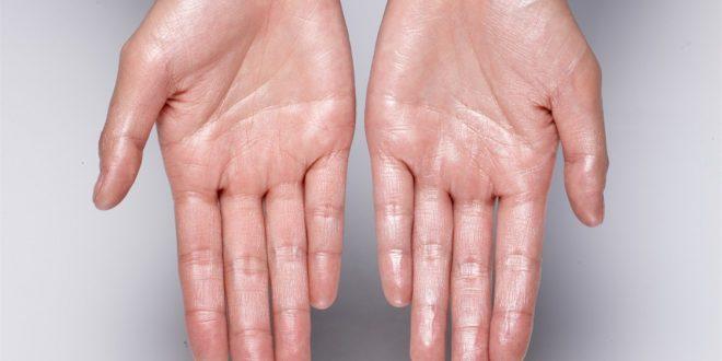 لعلاجات الفعّالة تخلّصكم من تعرق اليدين