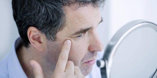 ما هي العوامل المسبّبة الشيخوخة المبكرة؟