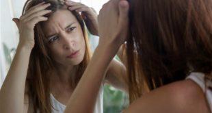 هل يؤدي التعرق الى تساقط الشعر