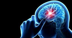 أطعمة يجب تجنبها لتحمي نفسك من السكتة الدماغية