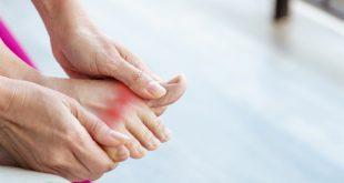 تنبّهوا الى هذه الاعراض التي تشير الى مرض النقرس في القدم!