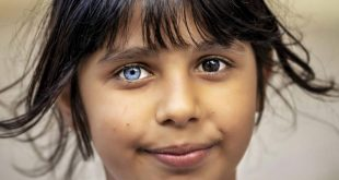 عينا طفلة سورية تشعل مواقع التواصل