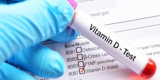 """أعراض تنذرك بنقص خطير في فيتامين """"د"""