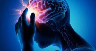 طريقة لمنع السكتة الدماغية