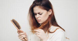 ما هي أسباب تساقط الشعر من جوانب الرأس
