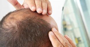 5 أسباب تؤدي إلى تساقط الشعر