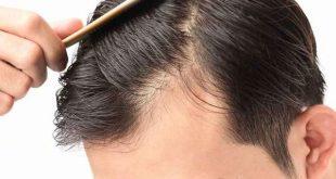 تعرفوا على أسباب تساقط الشعر من الامام وكيفية علاج المشكلة