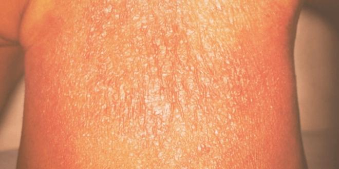 الطفح الجلدي