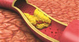 بخطوات بسيطة... واجهوا ارتفاع نسبة الكوليسترول السيء في الدم!