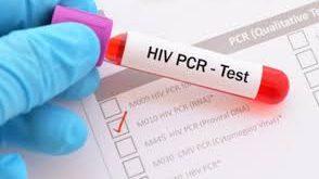 مدير صحة دمشق : لا يوجد سوى 8 مراكز لفحص PCR