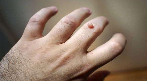 كيفية ازالة الزوائد الجلدية بالطرق الطبيعية