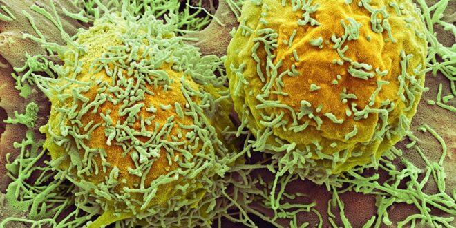 علماء يكتشفون دواء لـ.سرطان الرئة