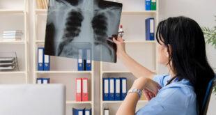 علامات على الأصابع تشير إلى الإصابة بسرطان الرئة