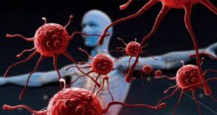 أعراض السرطان تظهر قبل خمس سنوات من المرض.. تعرفوا اليها الان
