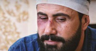كواليس تعرض خالد القيش للضرب