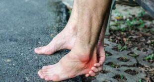 ماهي الأمراض التي تؤدي إلى الم كعب القدم.. ومتى يجب استشارة الطبيب؟