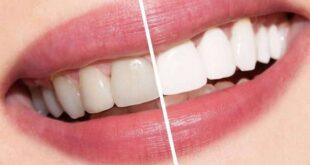 كيفية تبييض الاسنان بالليزر وهل له أضرار؟