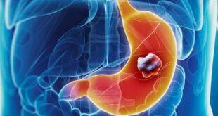 إليكم أعراض سرطان المعدة التي ربما تتجاهلونها