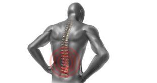 لصقة الظهر لتسكين الألم: فوائدها وطريقة وضعها وموانعها