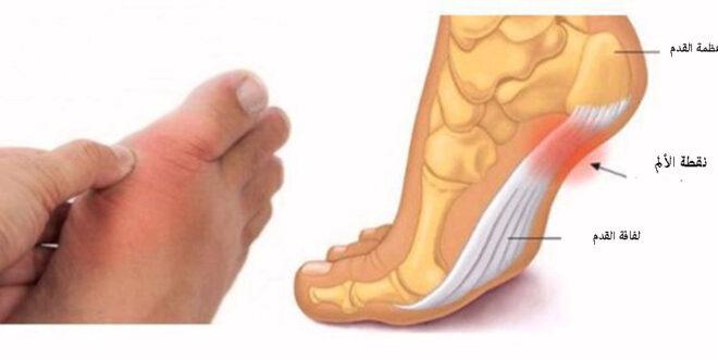 11 عارضاً في قدميكم يخبركم عن ضغط الدم والغدة الدرقية والتهاب المفاصل وأمراض أخرى