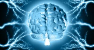 الإصابة بالسكتة الدماغية