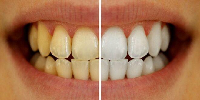 تغليف الأسنان.. نصائح مهمة من المختصين حول الفوائد المذهلة للعملية