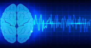 علامة غير متوقعة للإصابة بسرطان الدماغ