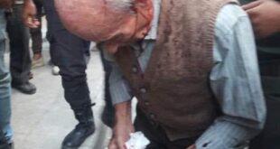 قضية الرجل المسن الذي ضرب على رأسه أمام الفرن بحلب تتفاعل