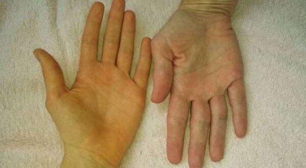 لماذا قد يتغير لون اليدين؟. ما الأسباب المحتملة لحدوث ذلك؟