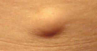 الكتلة الدهنية من اعراض الورم الشحمي.. تعرف إلى أعراض أخرى وعلى طرق العلاج
