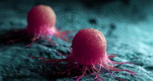 كيف يبدأ مرض السرطان