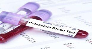 أعراض تنذرك بنقص البوتاسيوم في جسمك.. انتبه لها