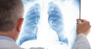 ما هي الأمراض التي تؤدي إلى الصعوبة في التنفس