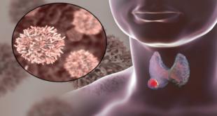 3 علامات تحذيرية لسرطان الغدة الدرقية ينبغي معرفتها!