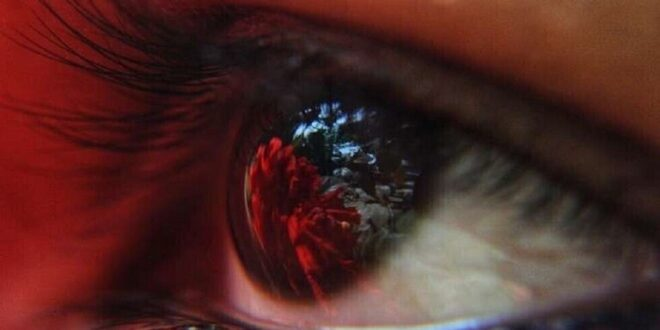 علامة في حدقة العين قد تنذر بالإصابة بنوع من سرطان الرئة