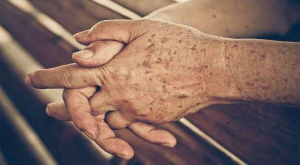 هل سمعت من قبل عن بقع الشيخوخة ؟