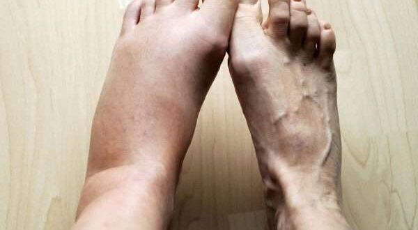 أشياء تخبرك بها قدمك عن صحتك