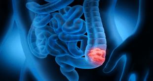 عادات الأمعاء غير الطبيعية قد تكون علامة على مرض مميت!