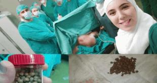 استخراج ١٨٠ حصاة من مثانة مريض خلال عمل جراحي في مشفى الاسد الجامعي بدمشق