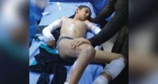 بتوجيه من الرئيس الأسد.. نقل الطفل الذي صعقته الكهرباء بطرطوس إلى مشفى تشرين