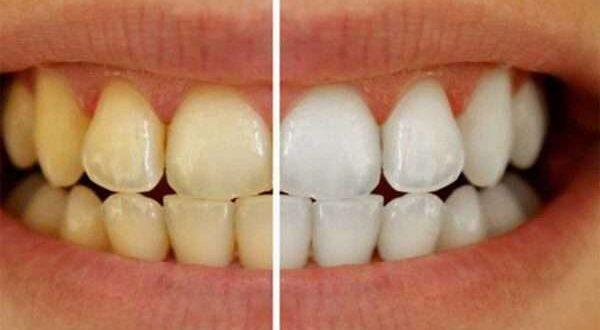 كيفية إزالة الجير من الأسنان بطرق طبيعية