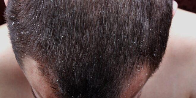 هل تعاني من قشرة الشعر ؟ إليك طرق طبيعية