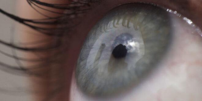 ثلاثة أعراض تصيب العين تكشف عن الإصابة بسرطان الرئة